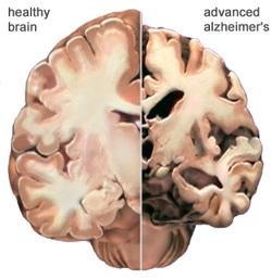 Proteîna Alzheimerê Çawa Mêjiyê Me Dadigire